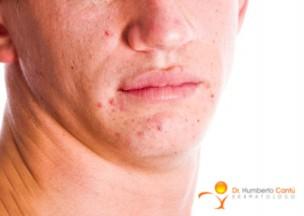 acne_tratamiento